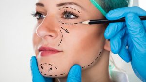 Does health insurance cover plastic surgery in Michigan?