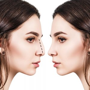 Pros and cons of a non-surgical nose job